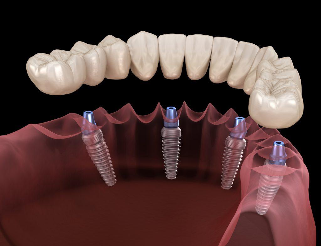 all on 4 dental implants ventura 3 - Ventura Dentist | Cidentist Dentist
