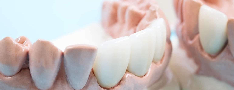 dental crowns dental bridges 1920x600 1 - Ventura Dentist | Cidentist Dentist