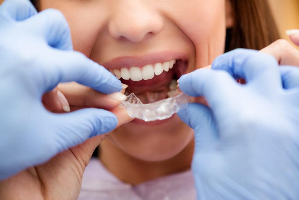 invisible braces P7RJ6FD 1 - Ventura Dentist | Cidentist Dentist