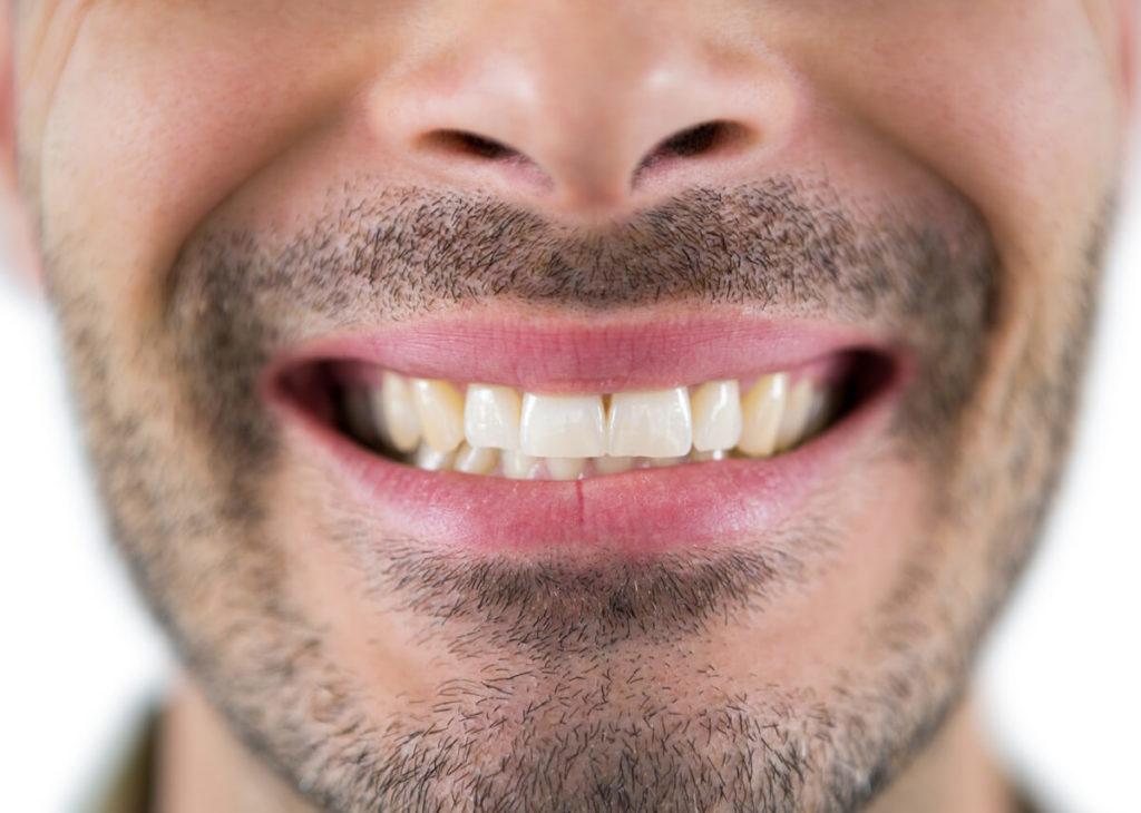 man showing his teeth YUFNXWG 1 - Ventura Dentist | Cidentist Dentist